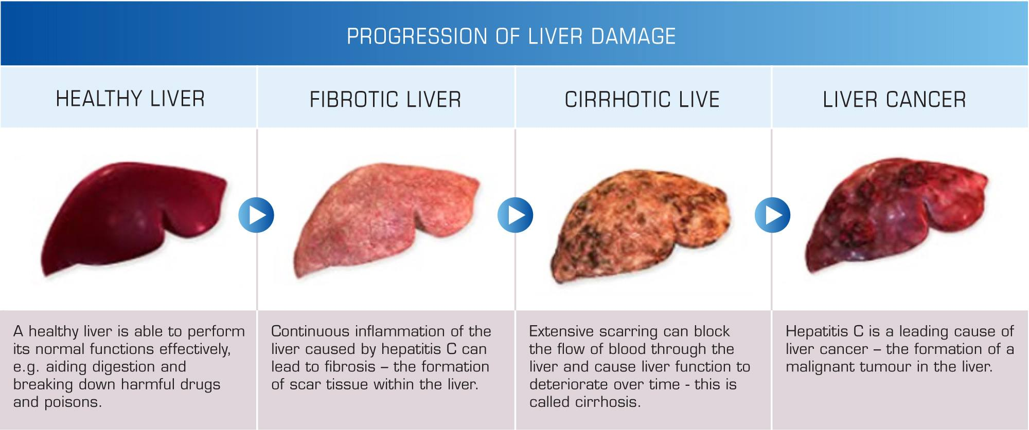 liver cirrhosis curing in uctc, Human Body